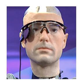 The Bionic Man